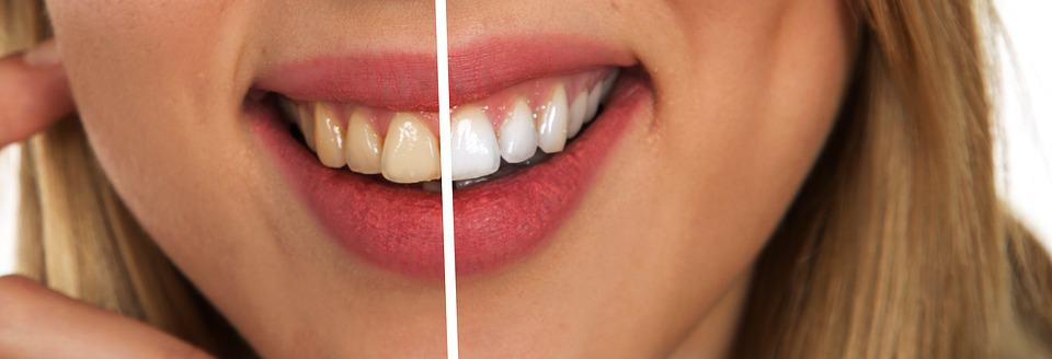 What Should I Know About Cosmetic Dentistry?
