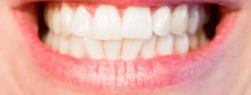 Teeth Whitening: Is It Really Safe?